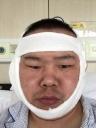 【特别策划】春晚表情包岳云鹏手术成功 医生告诉你手术室内到底在忙图片